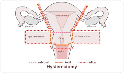 Uterus removal in gurgaon