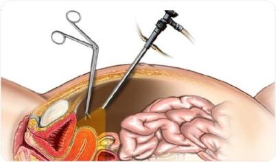 fertility enhancing surgery